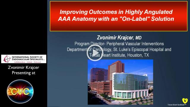 Krajcer-Improving Outcomes in Highly Angulated AAA Anatomy with an \